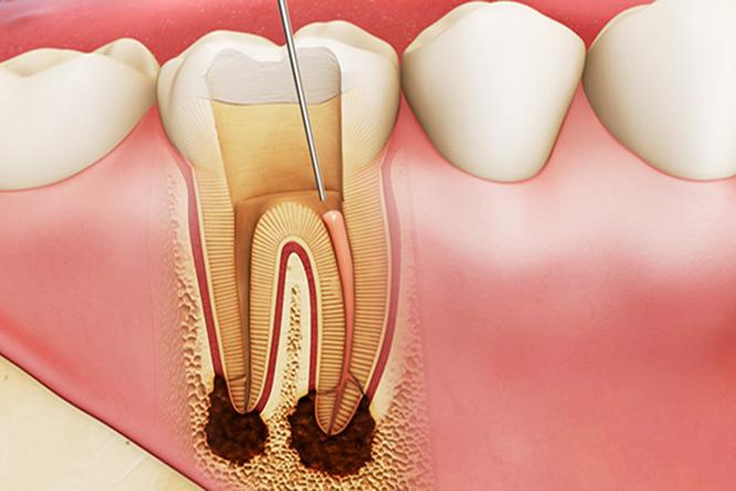 điều trị răng bị viêm tủy tại nha khoa Sài Gòn
