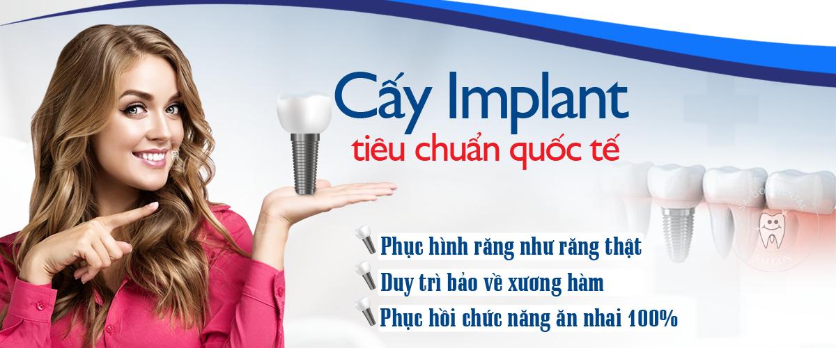 trong implant tai binh duong