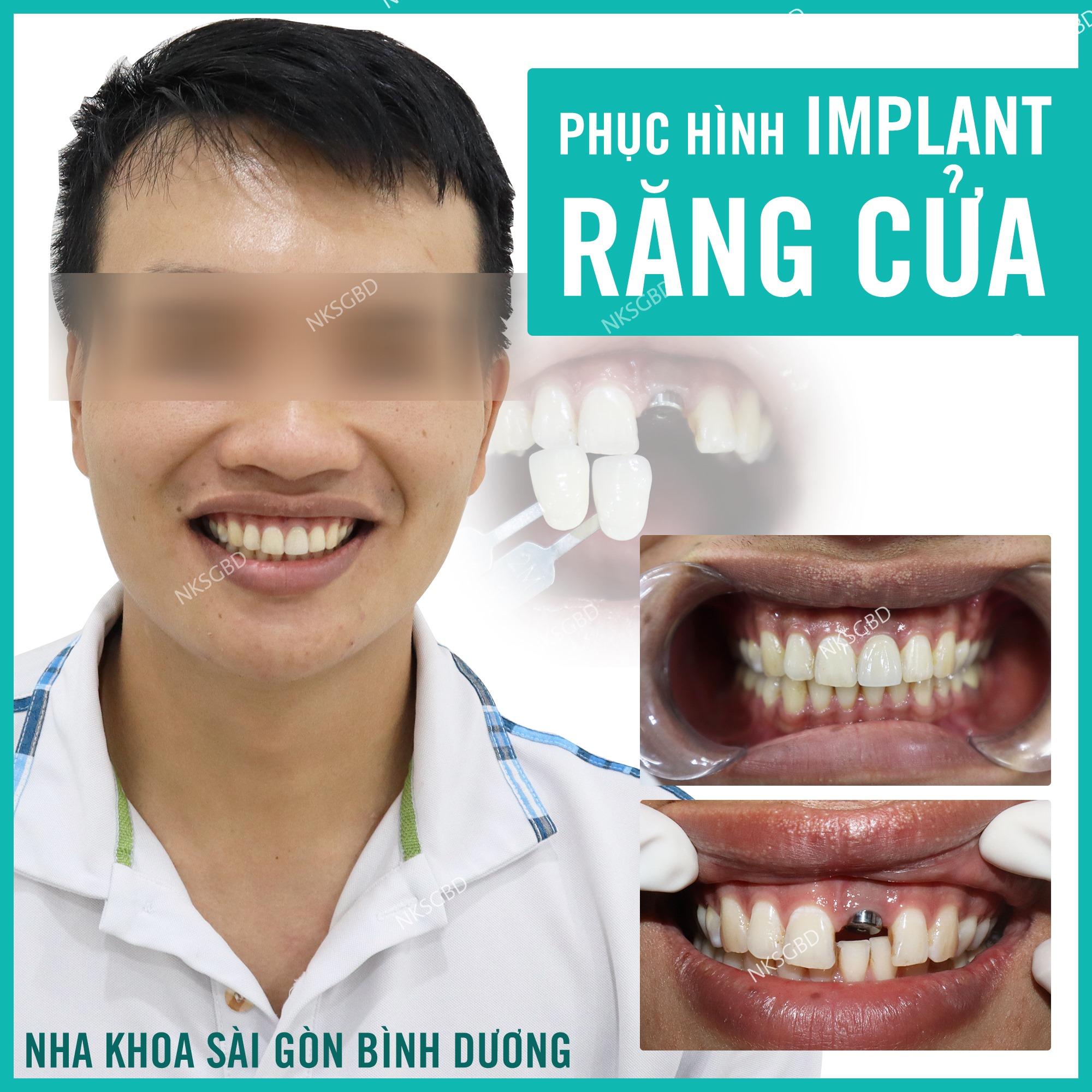 phuc hinh rang cua bang implant