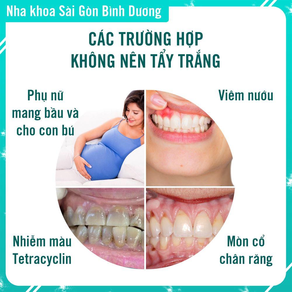 Các trường hợp không nên tẩy trắng răng