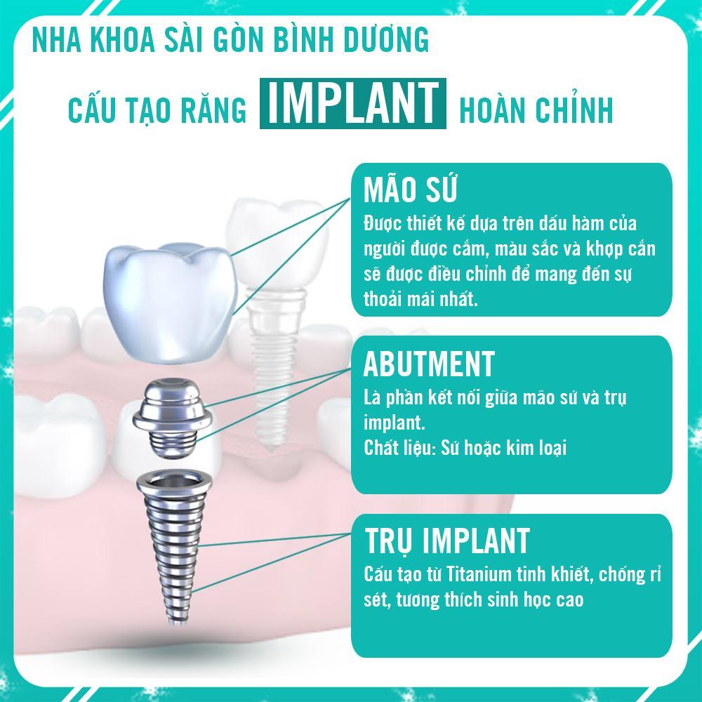 cấu tạo của 1 trụ implant