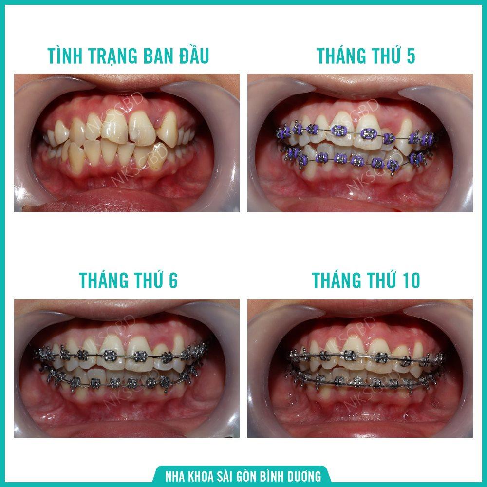 các bước trong quá trình niềng răng