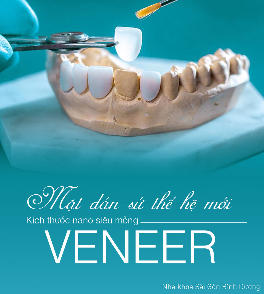 mặt dán sứ veneer giúp bảo tồn răng thật