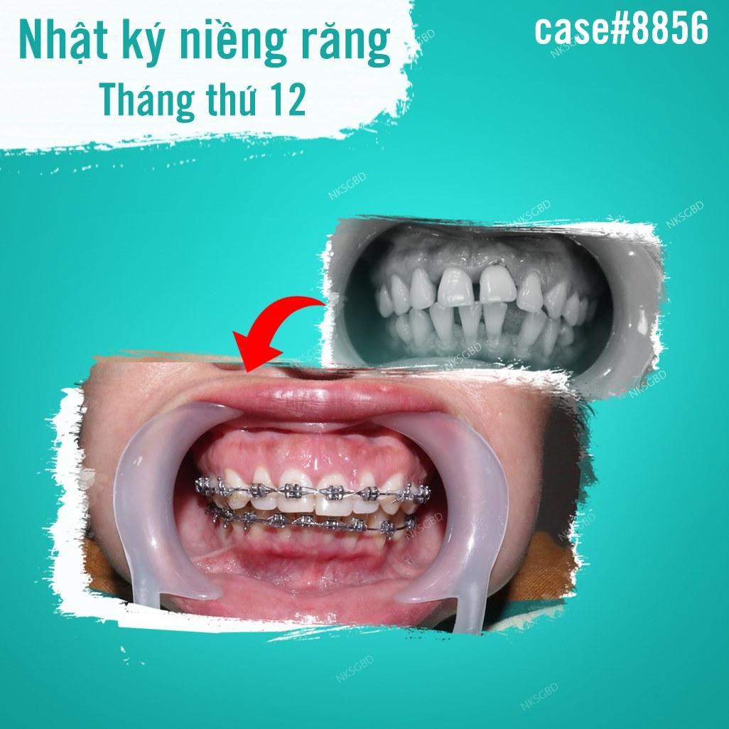 hình ảnh khách hàng niềng răng