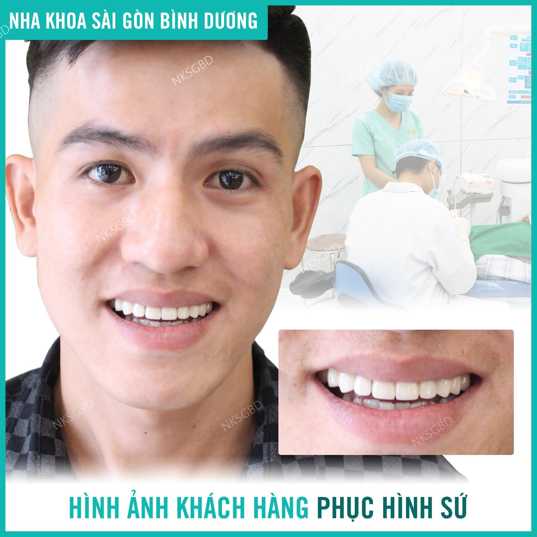 hình ảnh khách hàng bọc răng sứ tại nha khoa sài gòn