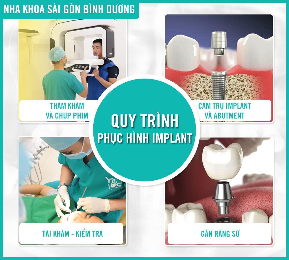 Quy trình 4 bước cắm implant tại nha khoa Sài Gòn