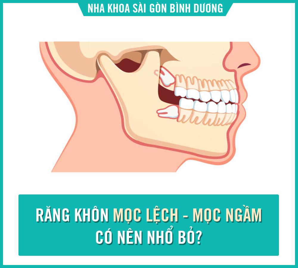 nhổ răng khôn tại nha khoa sài gòn