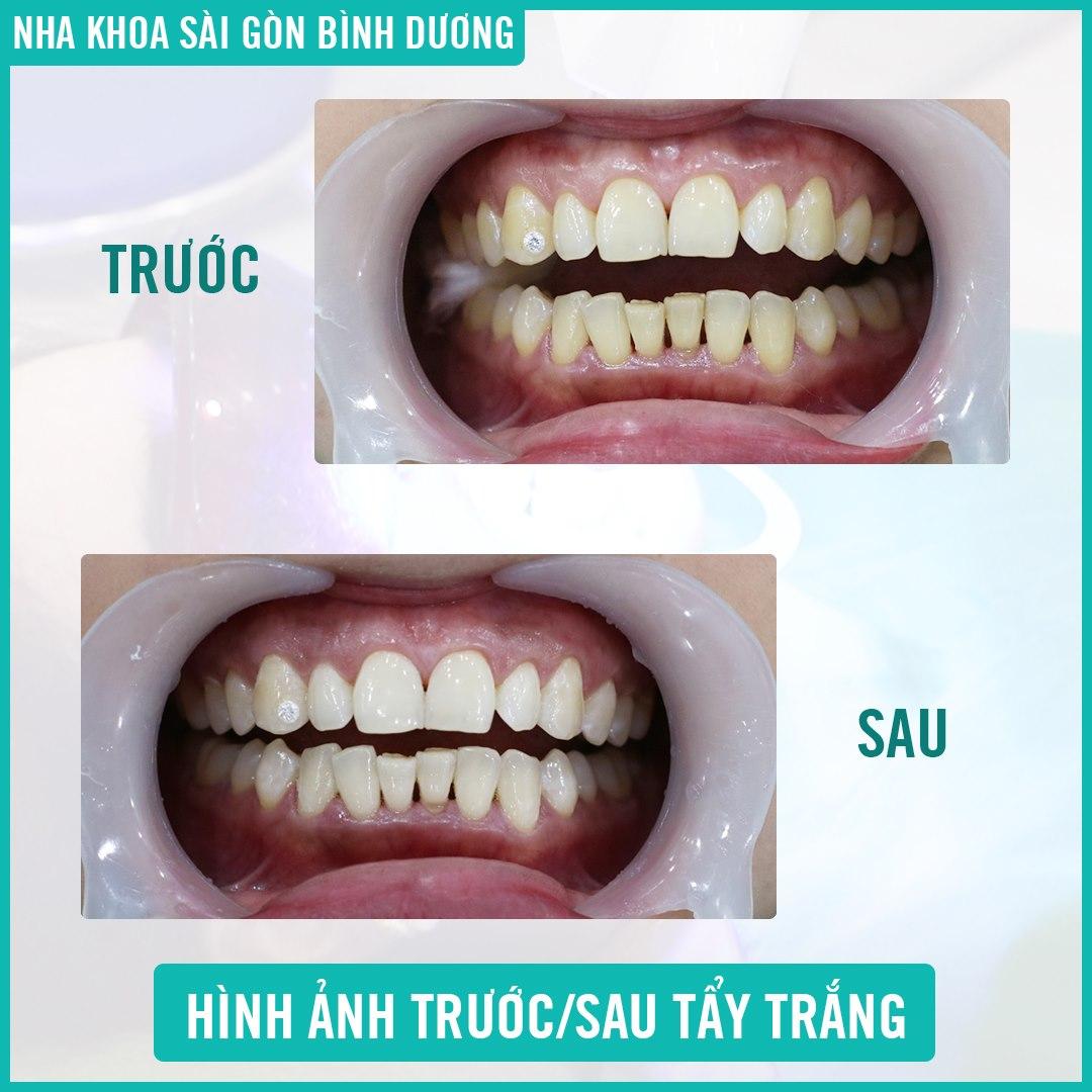 Hình ảnh trước sau khi tẩy trắng răng