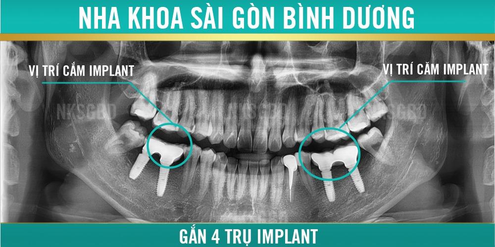 vi tri cam implant