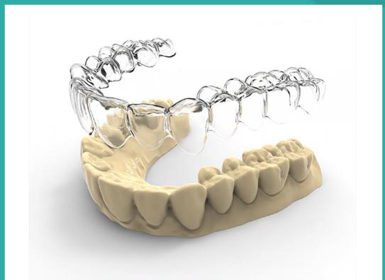 máng duy trì trong quá trình niềng răng