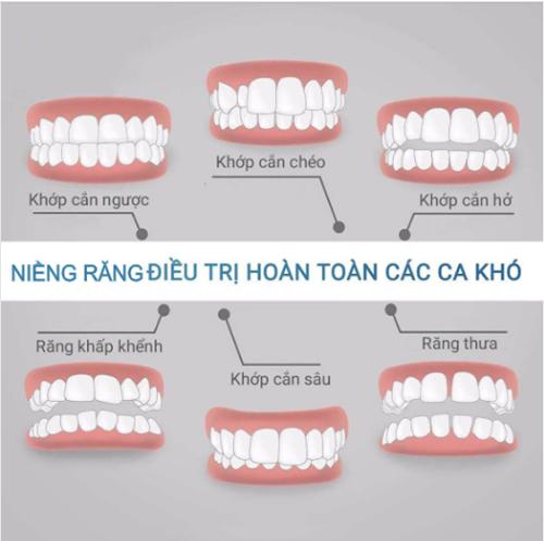 Các trường hợp nên sử dụng niềng răng mắc cài kim loại
