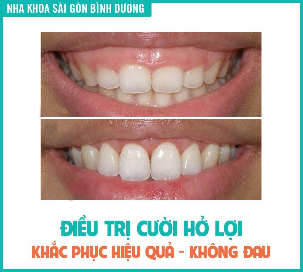 Điều trị cười hở lợi tại nha khoa sài gòn