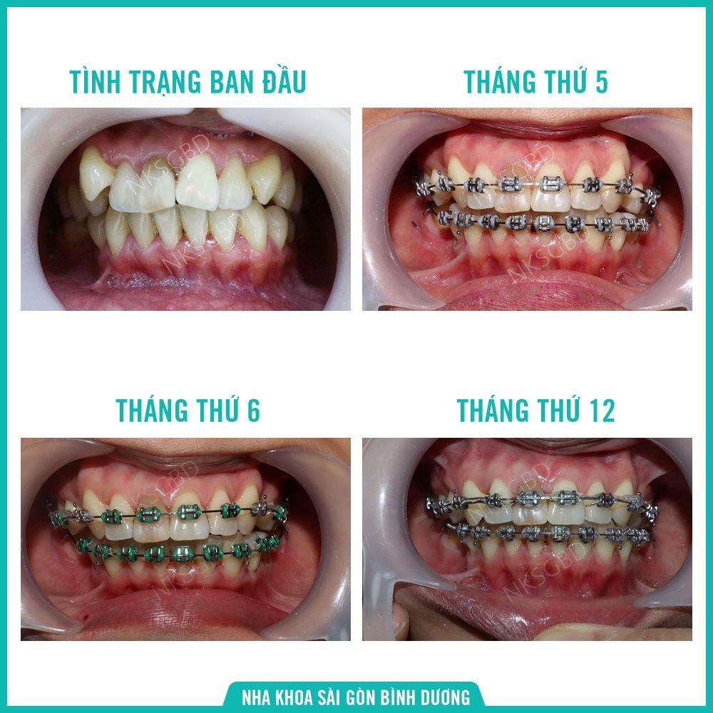 Khách hàng niềng răng sau 1 năm bằng mắc cài kim loại