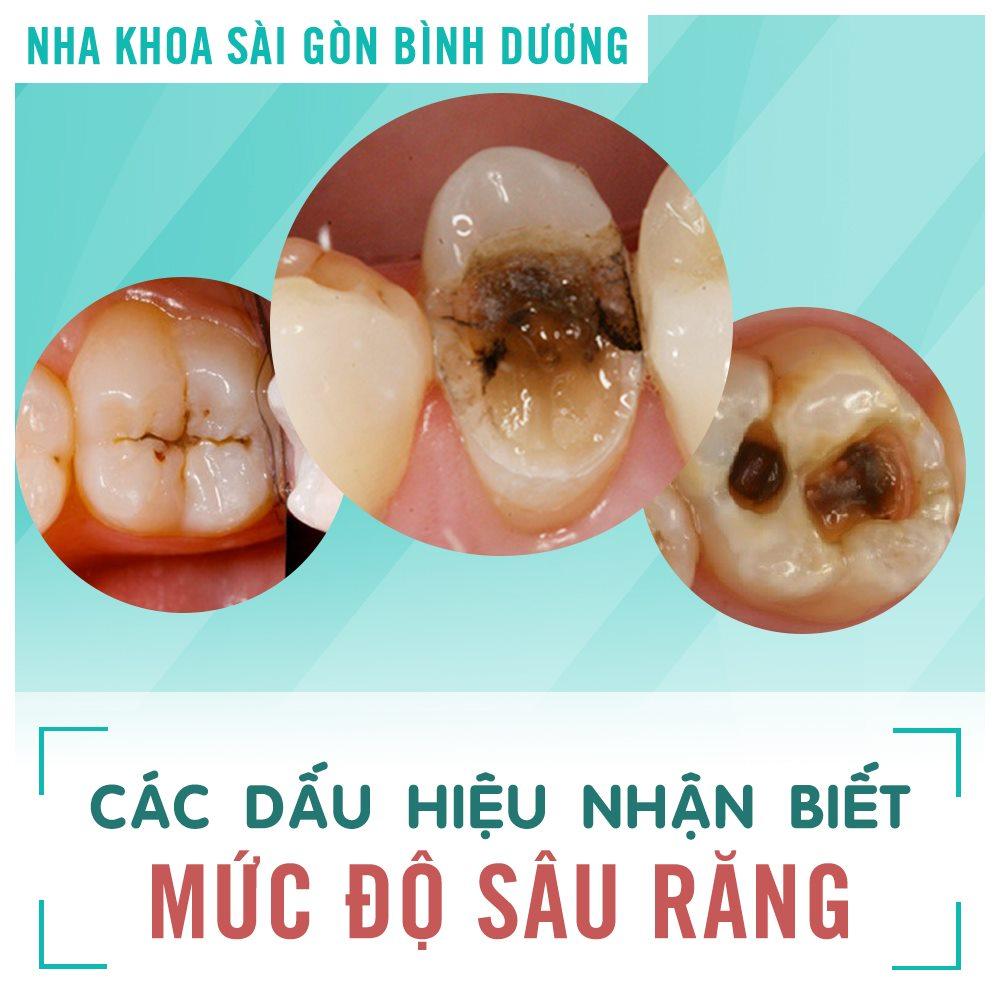 nhổ răng sâu tại nha khoa sài gòn