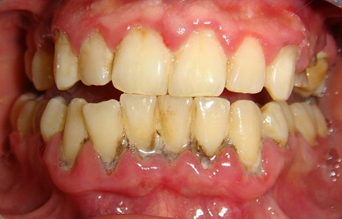 Gây viêm nha chu, tuột nướu khi vôi răng quá nhiều