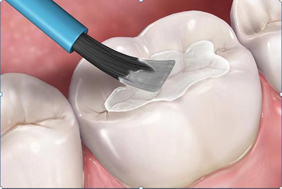 Trám răng thẩm mỹ tại nha khoa sài gòn