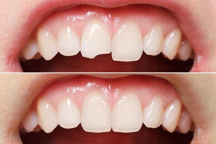 trám răng thẩm mỹ khắc phục răng cửa bị mẻ