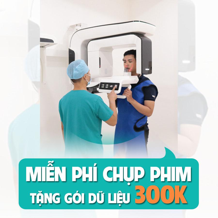 tang goi du lieu chinh nha